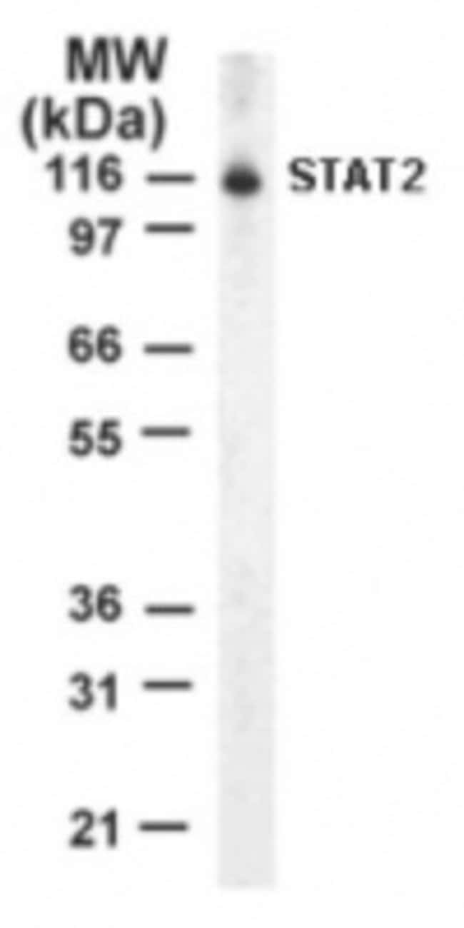anti-STAT2, Polyclonal, Novus Biologicals:Antibodies:Primary Antibodies