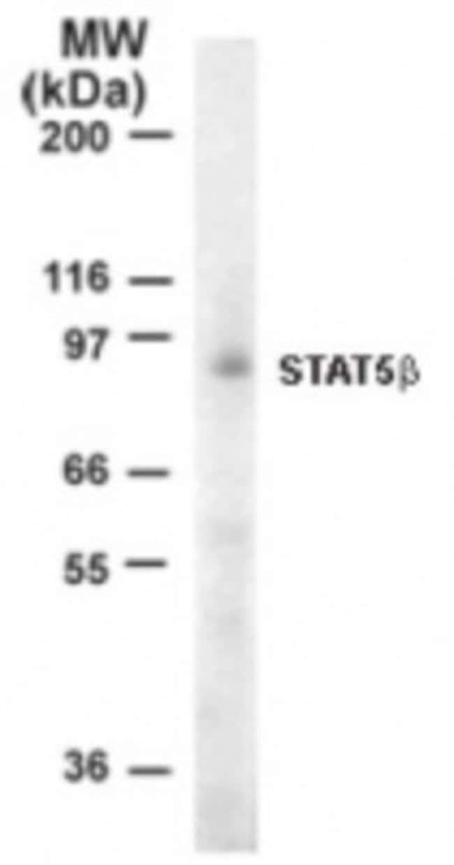 anti-STAT5b, Polyclonal, Novus Biologicals:Antibodies:Primary Antibodies