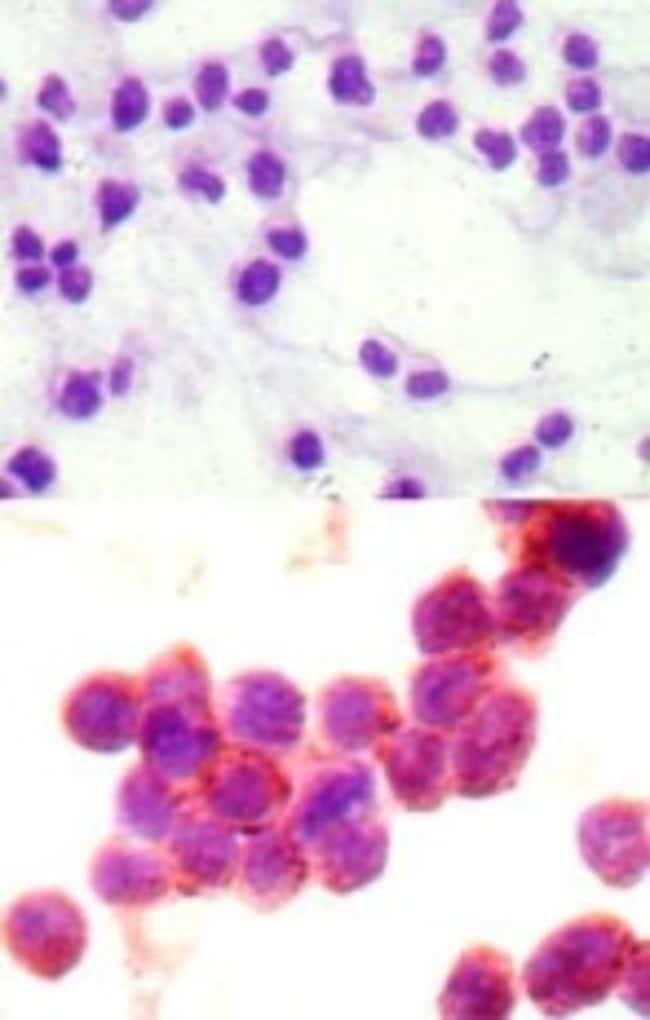 anti-STAT6, Polyclonal, Novus Biologicals:Antibodies:Primary Antibodies
