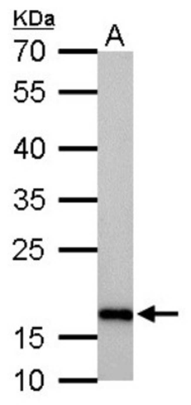 anti-Stathmin 1, Polyclonal, Novus Biologicals 0.1mL; Unlabeled:Life Sciences