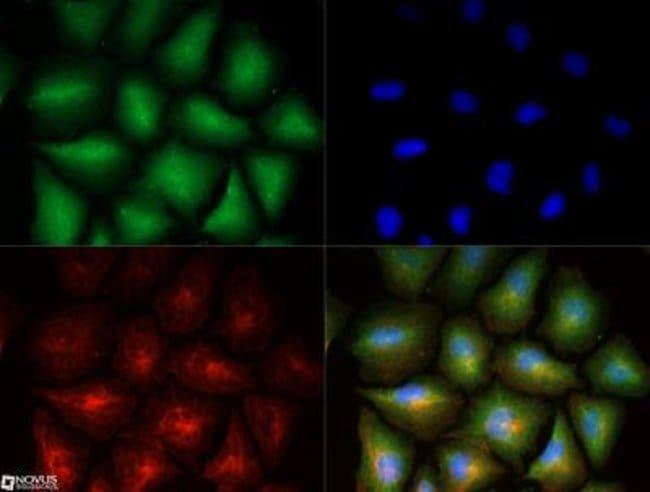 anti-Stathmin 1, Polyclonal, Novus Biologicals 0.025mL; Unlabeled:Life