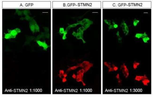 anti-Stathmin-2/STMN2, Polyclonal, Novus Biologicals:Antibodies:Primary