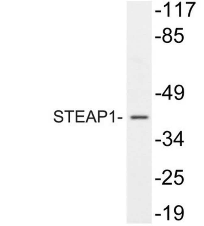anti-STEAP1, Polyclonal, Novus Biologicals 0.1mg; Unlabeled:Life Sciences