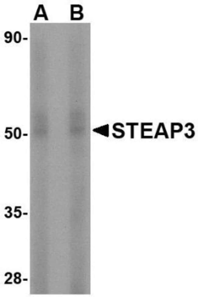 anti-STEAP3/TSAP6, Polyclonal, Novus Biologicals 0.1mg; Unlabeled:Life
