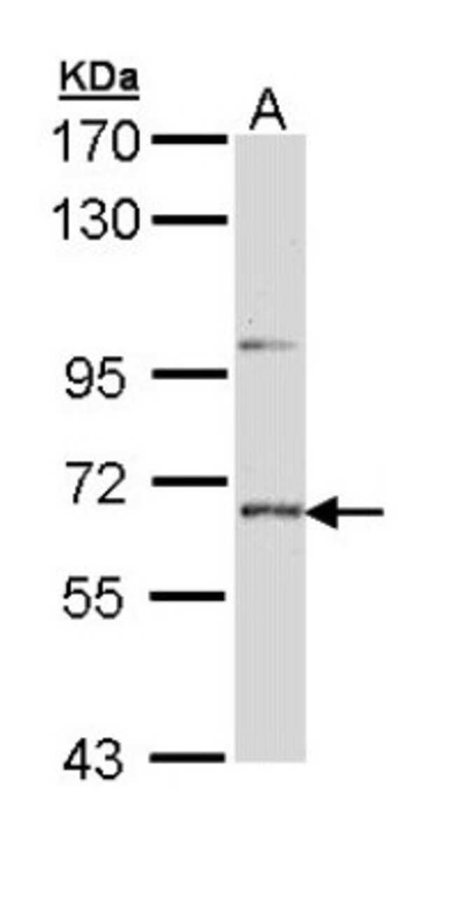 anti-STEP, Polyclonal, Novus Biologicals 0.1mL; Unlabeled:Life Sciences