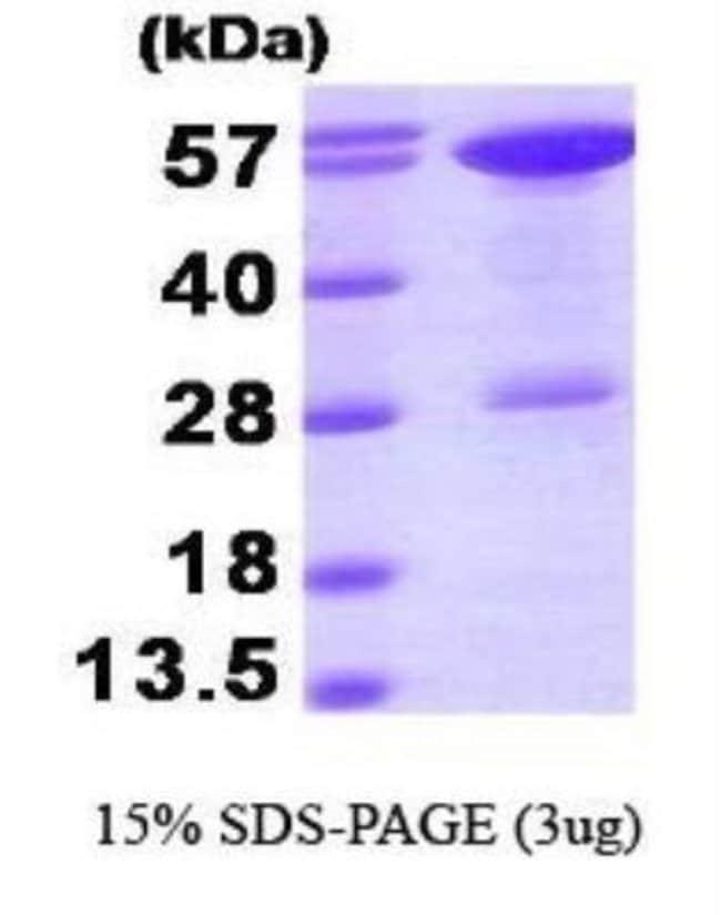 Novus BiologicalsHuman STI1 Protein 0.1mg; Unlabeled:Biochemical Reagents