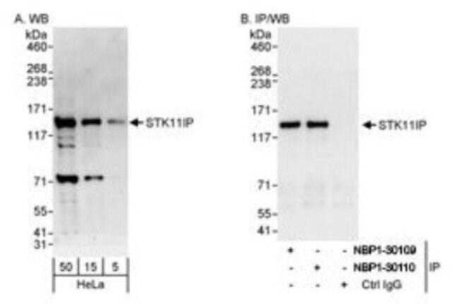 anti-STK11IP, Polyclonal, Novus Biologicals 0.1mL; Unlabeled:Antibodies