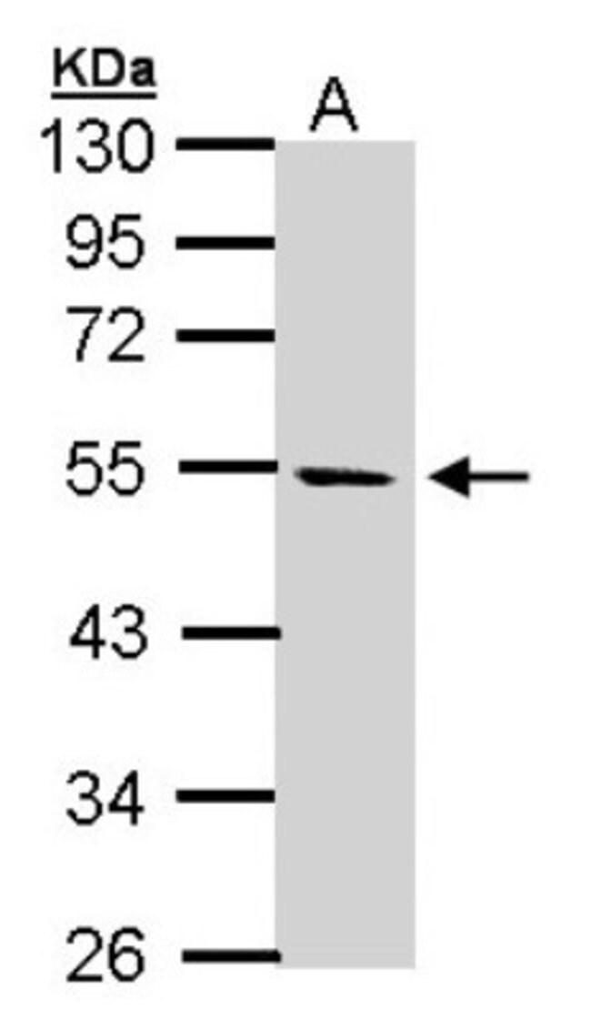anti-STK25, Polyclonal, Novus Biologicals 0.1mL; Unlabeled:Life Sciences