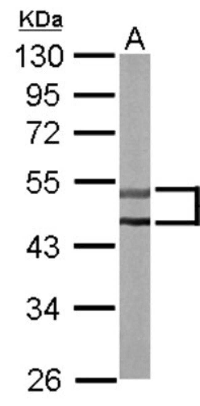 anti-STK32C, Polyclonal, Novus Biologicals 0.1mL; Unlabeled:Antibodies