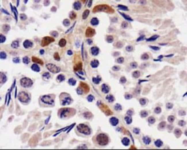 anti-STK33, Polyclonal, Novus Biologicals:Antibodies:Primary Antibodies