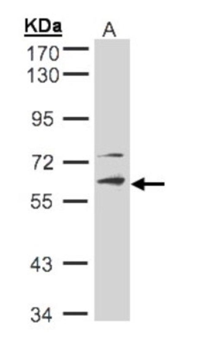 anti-STK33, Polyclonal, Novus Biologicals 0.1mg; Unlabeled:Life Sciences