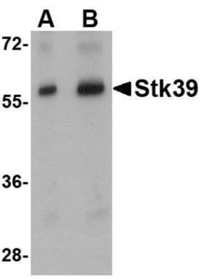 anti-STK39, Polyclonal, Novus Biologicals 0.1mg; Unlabeled:Life Sciences