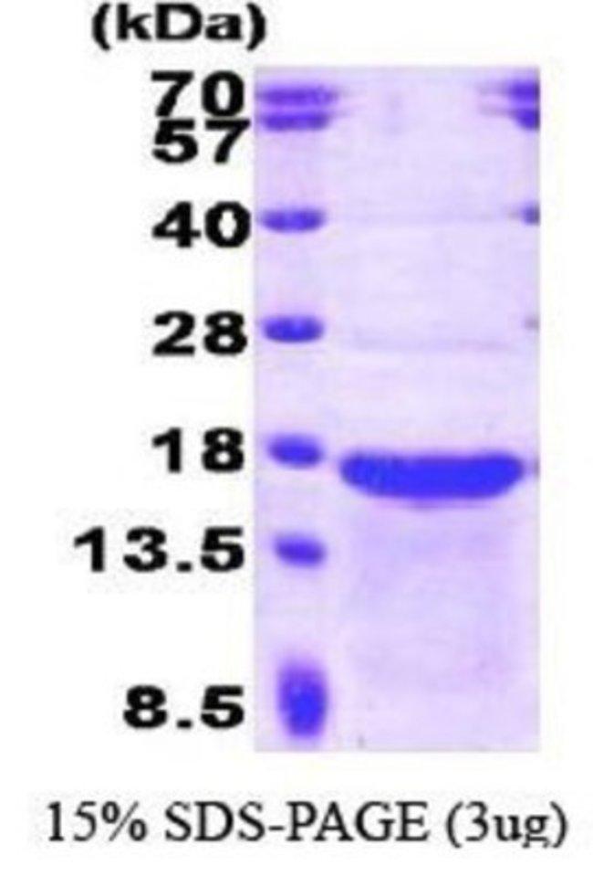 Novus BiologicalsStathmin-2/STMN2 Protein 0.1mg; Unlabeled:Biochemical