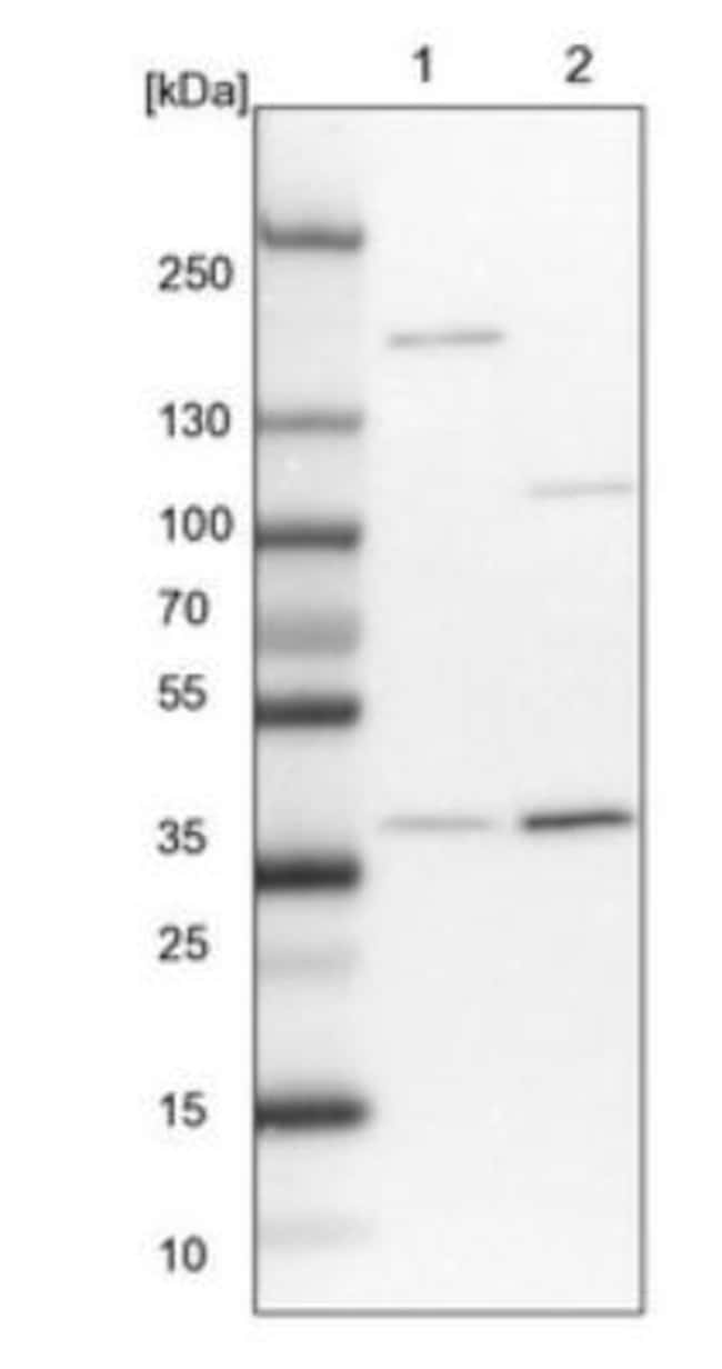 anti-STRAP, Polyclonal, Novus Biologicals 0.1mL; Unlabeled:Life Sciences