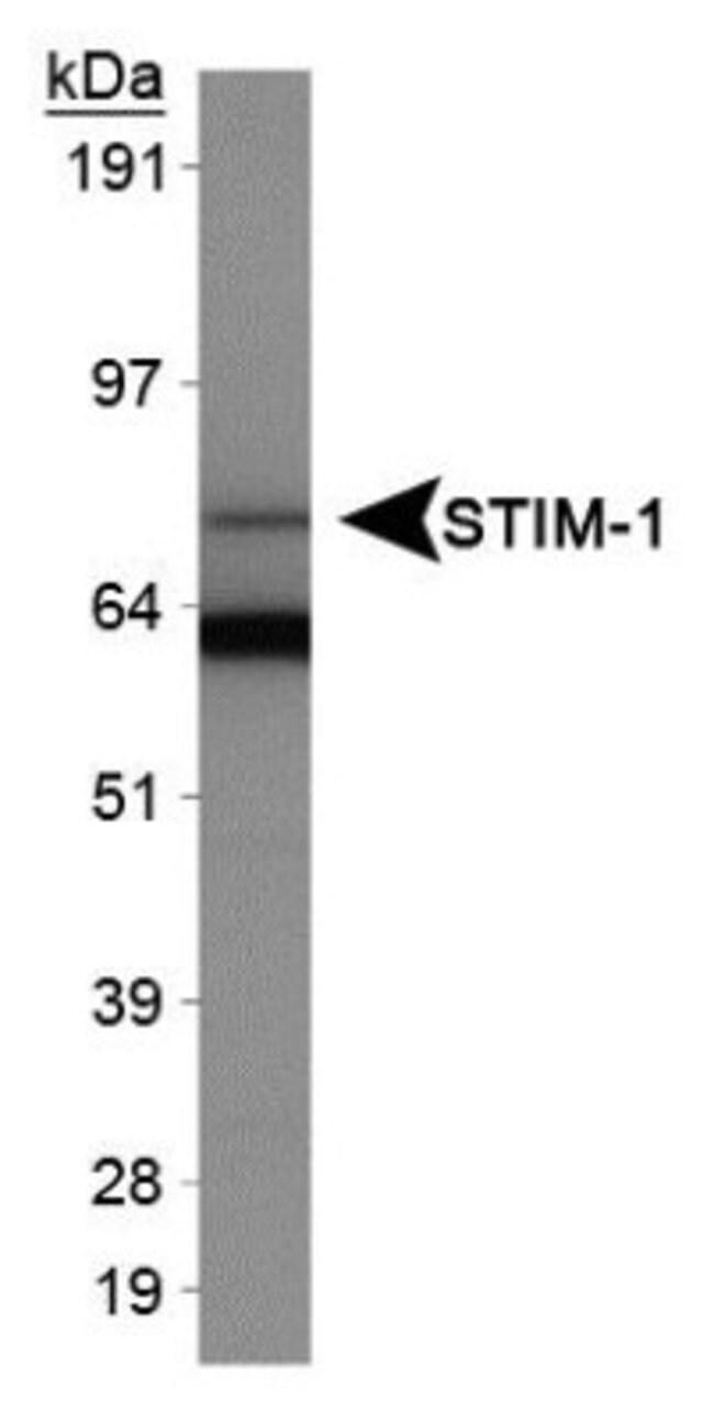 anti-STIM1, Polyclonal, Novus Biologicals:Antibodies:Primary Antibodies