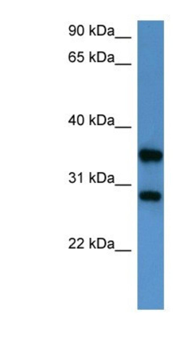 STYXL1 Rabbit anti-Human, Polyclonal, Novus Biologicals 100µL; Unlabeled:Life