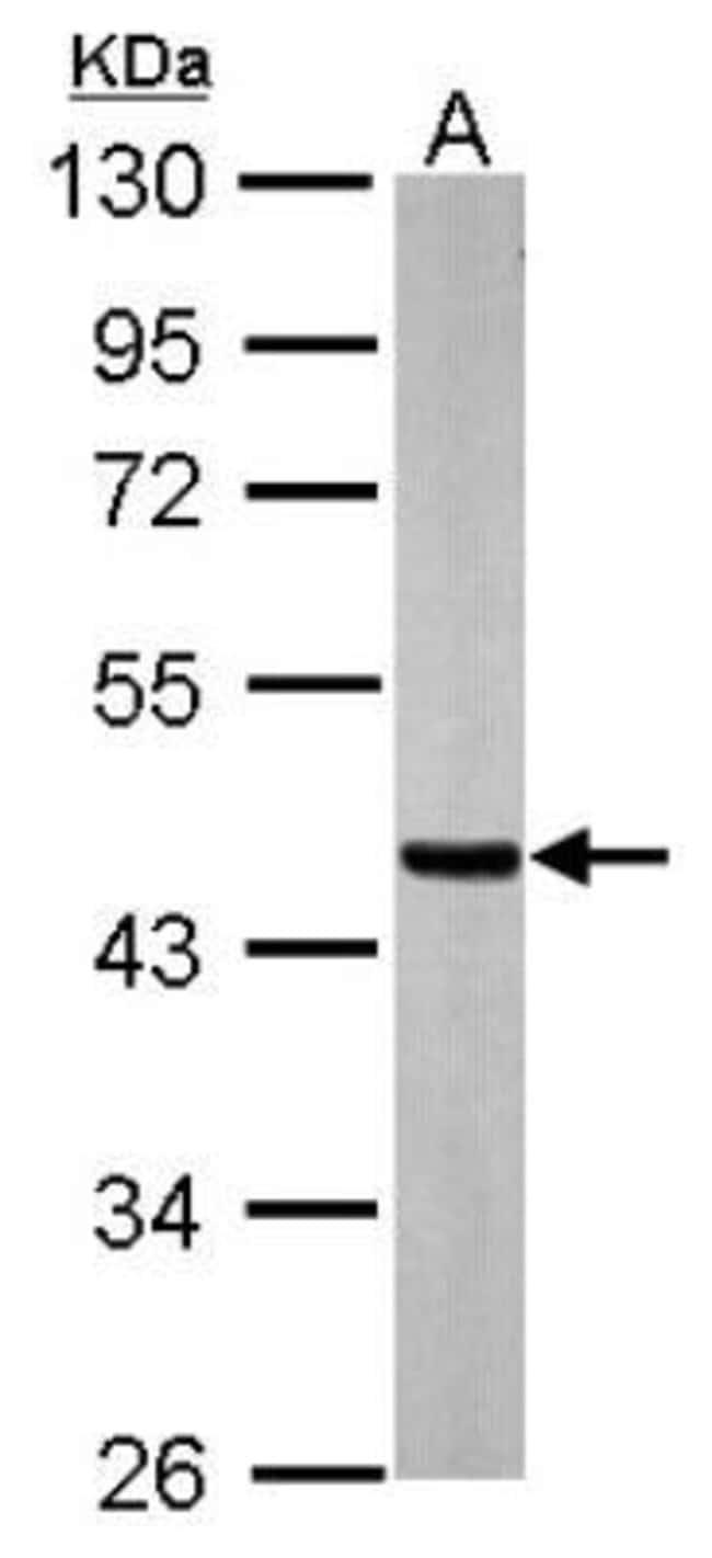 anti-SUCLA2, Polyclonal, Novus Biologicals 0.1mg; Unlabeled:Life Sciences