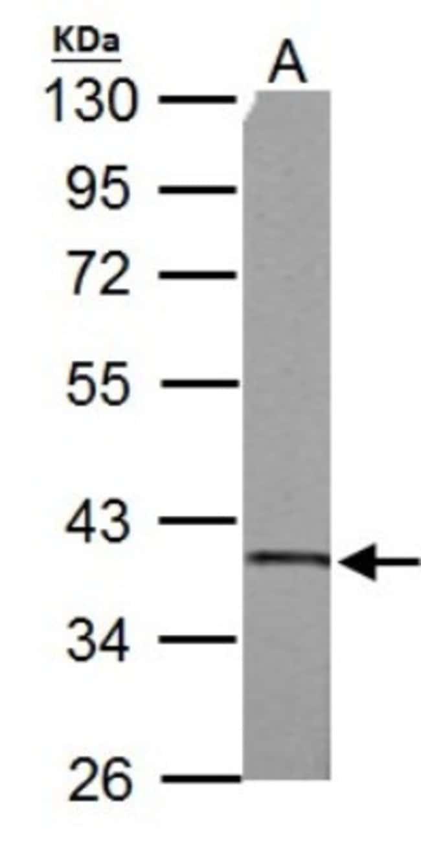 anti-SUCLG1, Polyclonal, Novus Biologicals 0.1mg; Unlabeled:Life Sciences