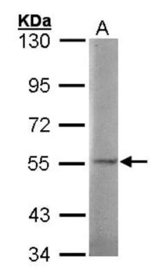 anti-Sulfamidase/SGSH, Polyclonal, Novus Biologicals 0.1mL; Unlabeled:Life