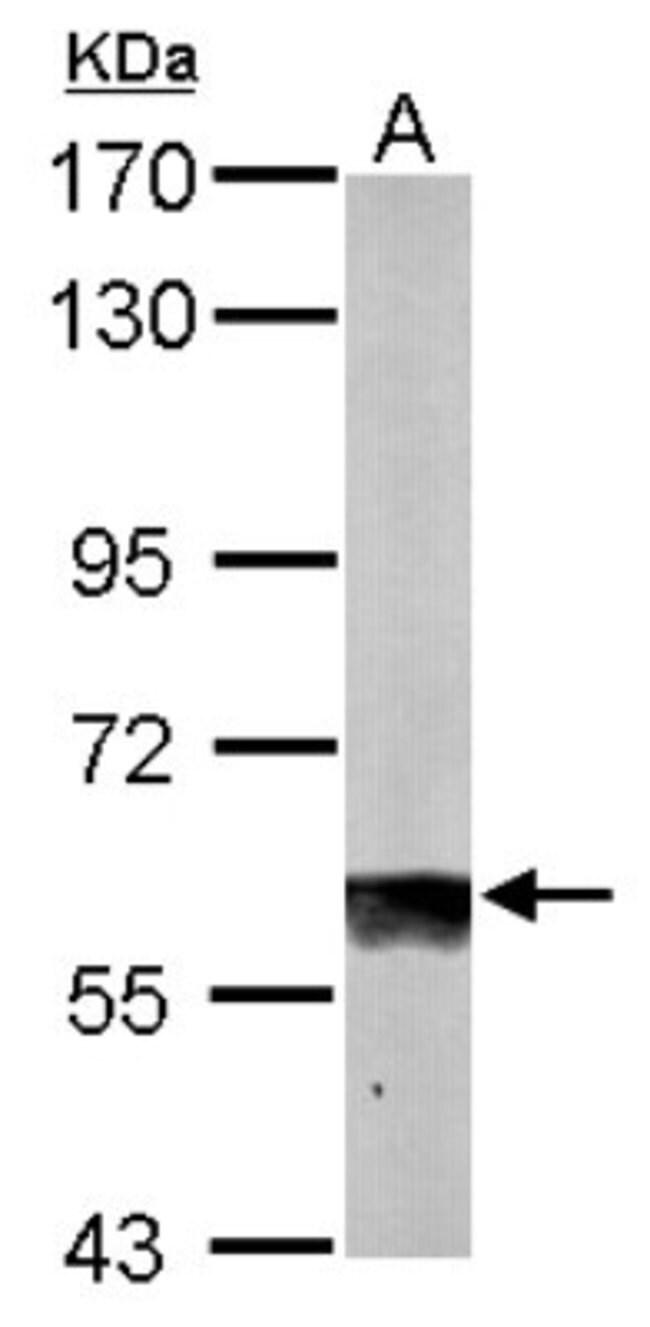 anti-SUOX, Polyclonal, Novus Biologicals 100 ul; Unconjugated:Life Sciences