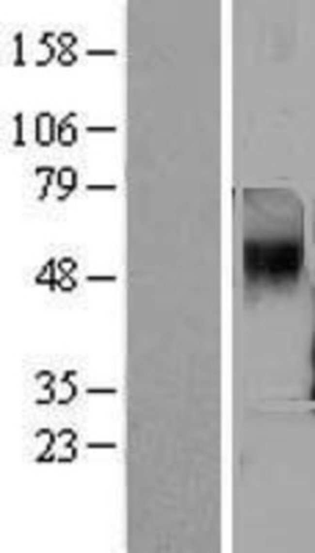 Novus Biologicals TAAR5 Overexpression Lysate (Native) 0.1mg:Life Sciences