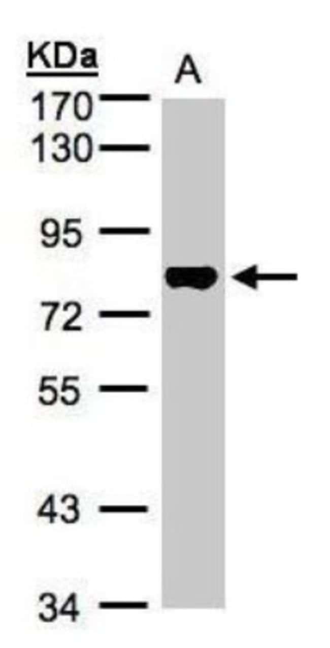 anti-TAF15, Polyclonal, Novus Biologicals 0.1mg; Unlabeled:Life Sciences