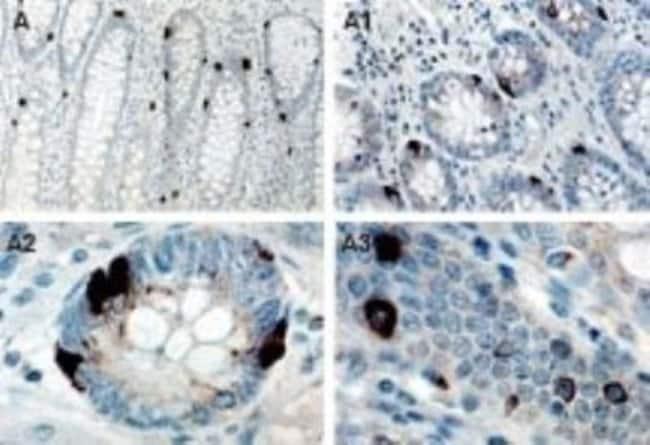 TANK Rabbit anti-Human, Mouse, Rat, Polyclonal, Novus Biologicals:Antibodies:Primary