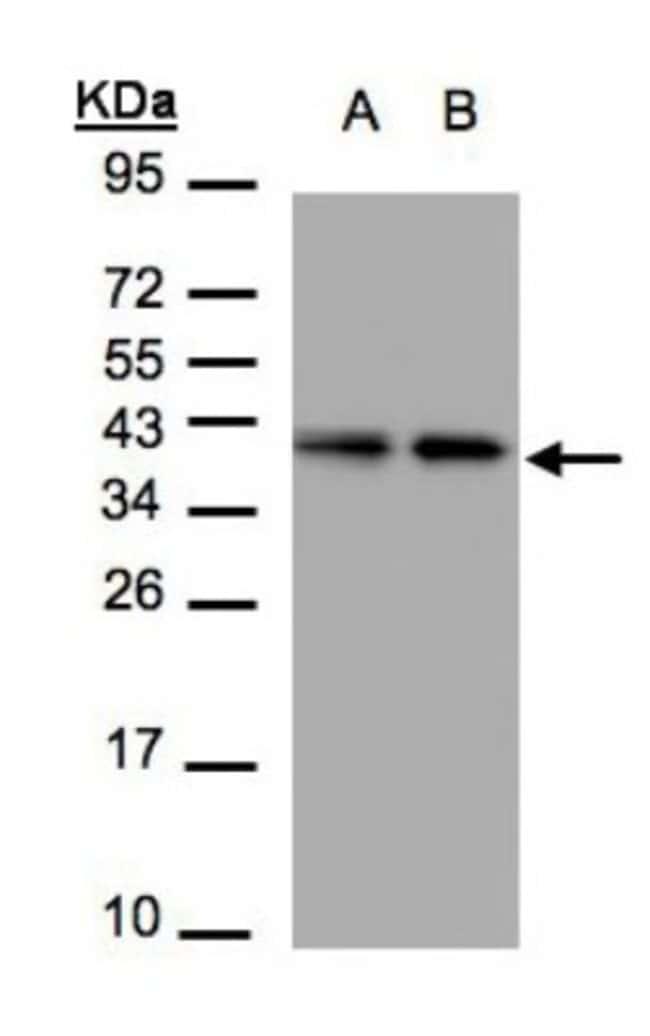 anti-TBCC, Polyclonal, Novus Biologicals 0.1mL; Unlabeled:Life Sciences
