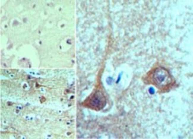 anti-TBKBP1, Polyclonal, Novus Biologicals:Antibodies:Primary Antibodies