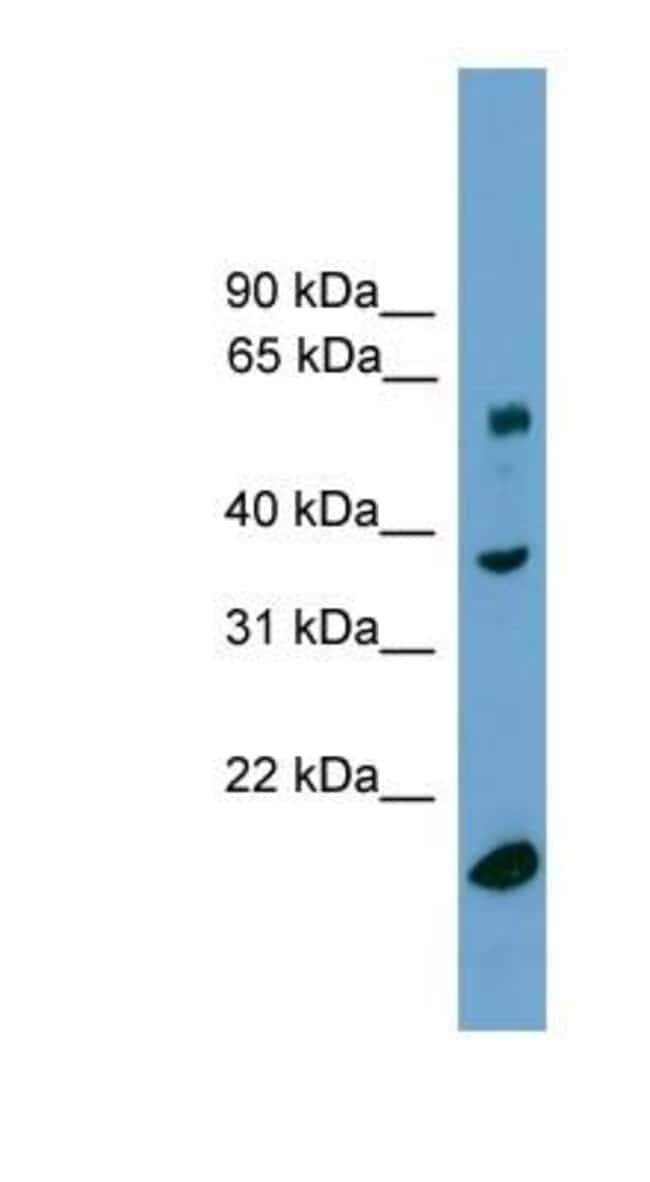 TBL1Y Rabbit anti-Human, Polyclonal, Novus Biologicals 20µL; Unlabeled