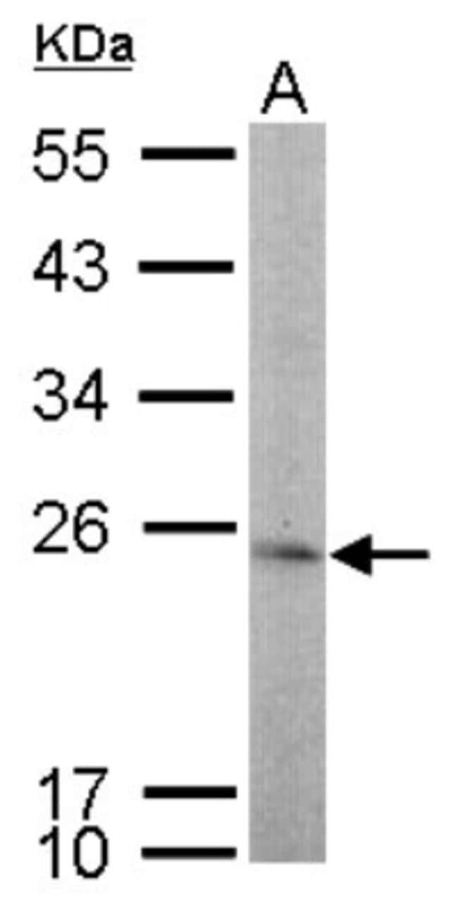 anti-TBP like protein TLP, Polyclonal, Novus Biologicals 0.1mg; Unlabeled:Life