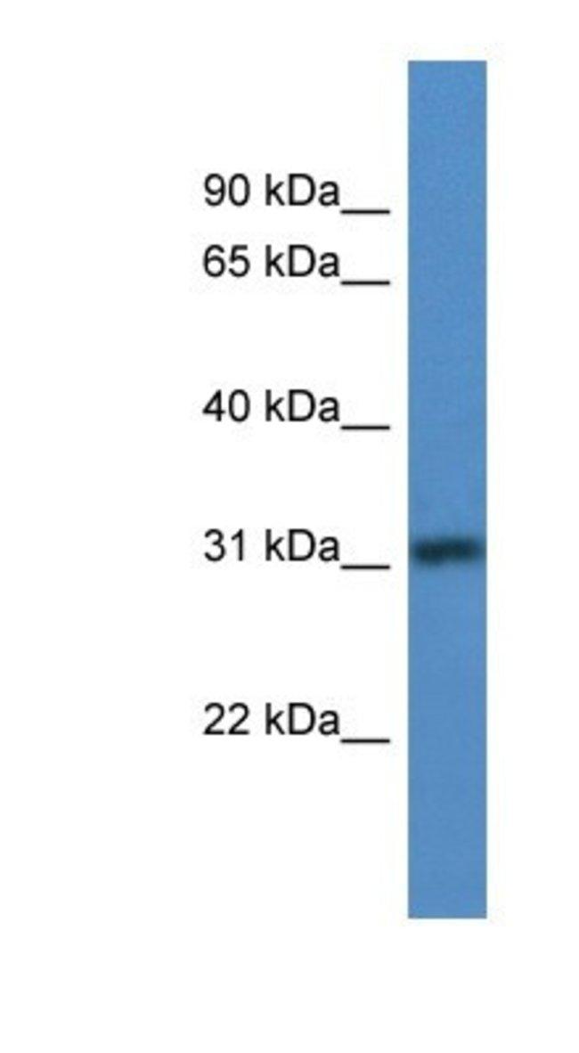 TBRG1 Rabbit anti-Human, Polyclonal, Novus Biologicals 100µL; Unlabeled:Life