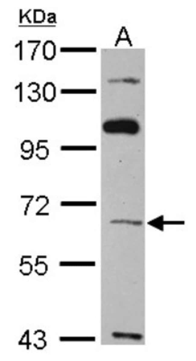 anti-TBX4, Polyclonal, Novus Biologicals 0.1mg; Unlabeled:Antibodies