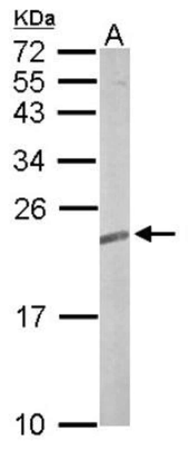 anti-TC21/R-Ras2, Polyclonal, Novus Biologicals 0.1mL; Unlabeled:Antibodies