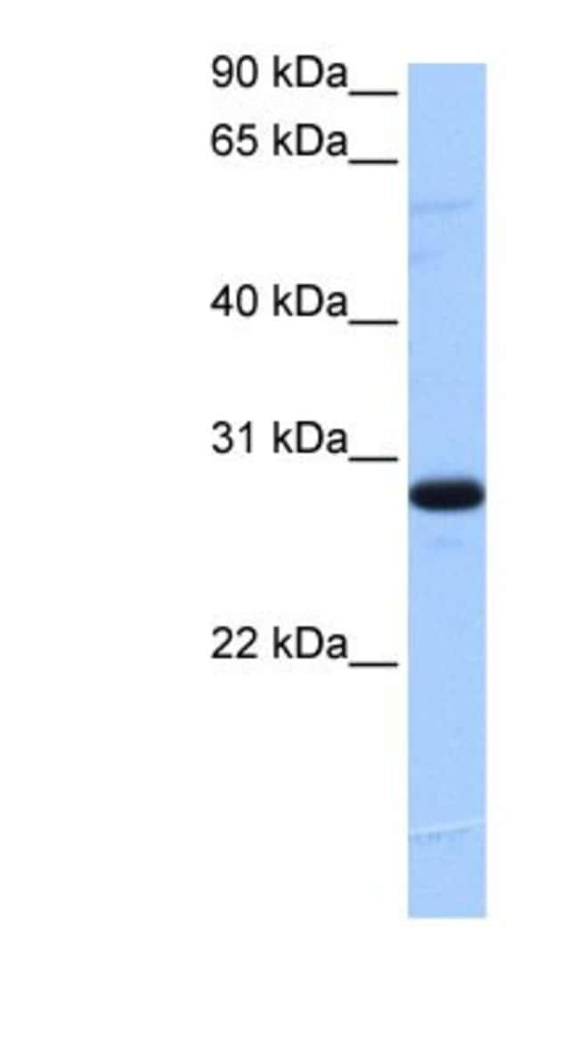 TCEANC2 Rabbit anti-Human, Polyclonal, Novus Biologicals 20µL; Unlabeled