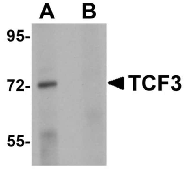 anti-TCF-3/E2A, Polyclonal, Novus Biologicals 0.1mg; Unlabeled:Life Sciences