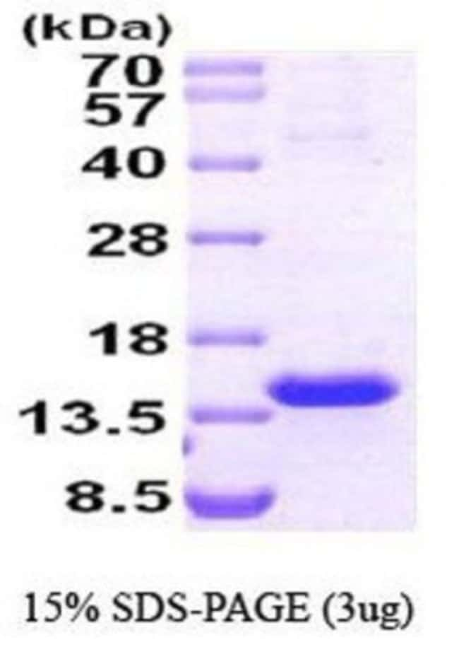 Novus Biologicals Human TCL1A Protein 0.1mg; Unlabeled:Life Sciences