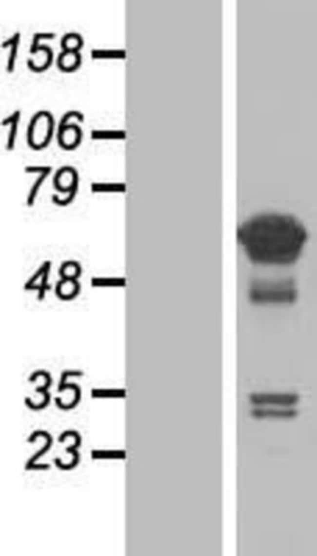 Novus Biologicals TCP11L1 Overexpression Lysate (Native) 0.1mg:Life Sciences