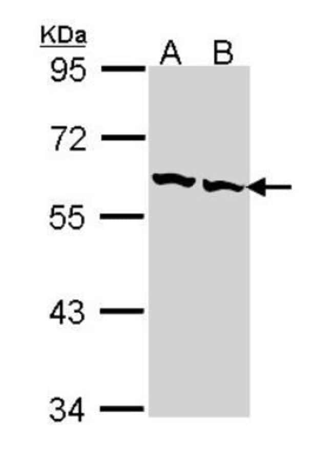 anti-TCP1-beta, Polyclonal, Novus Biologicals 0.1mg; Unlabeled:Life Sciences