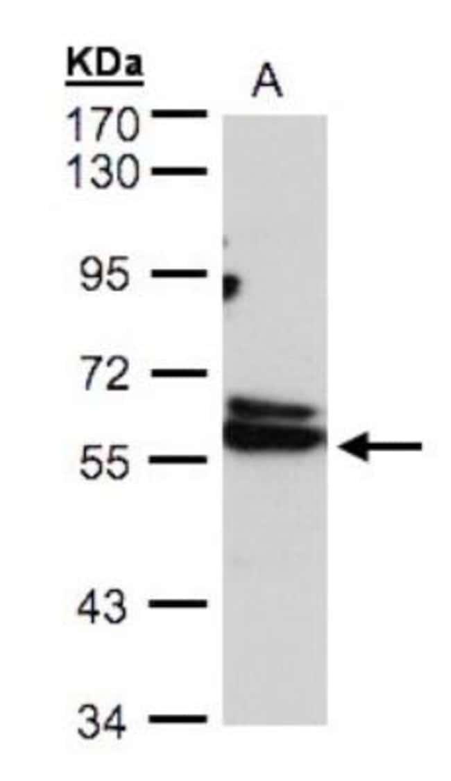 anti-TCP1-delta, Polyclonal, Novus Biologicals 0.1mL; Unlabeled:Antibodies