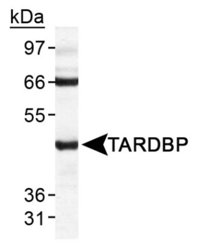 anti-TDP-43/TARDBP, Polyclonal, Novus Biologicals:Antibodies:Primary Antibodies