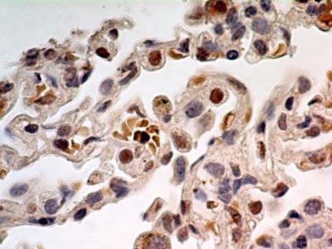 anti-TdT, Polyclonal, Novus Biologicals:Antibodies:Primary Antibodies