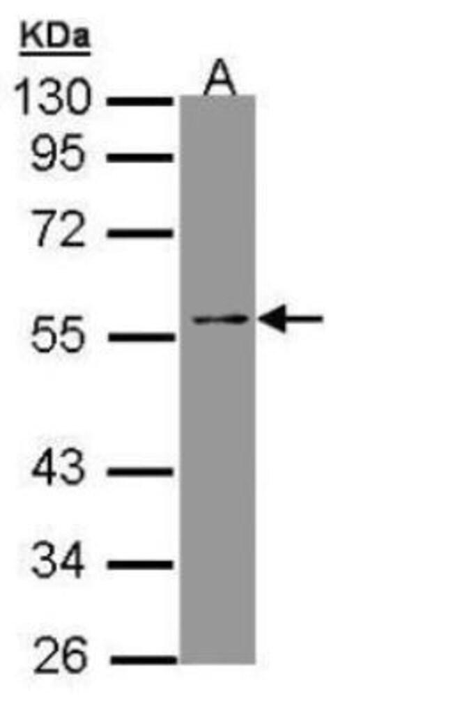 anti-TEAD4, Polyclonal, Novus Biologicals 0.1mg; Unlabeled:Life Sciences