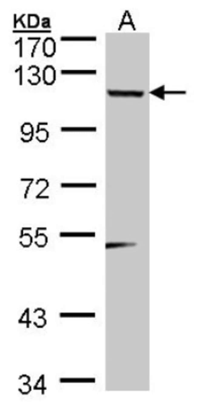anti-Teashirt homolog 1, Polyclonal, Novus Biologicals 0.1mg; Unlabeled:Life
