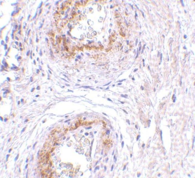 anti-TEM5/GPR124, Polyclonal, Novus Biologicals 0.1mg; Unlabeled:Life Sciences