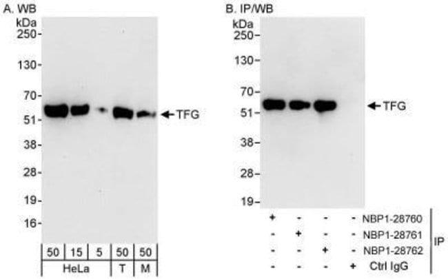 anti-TFG, Polyclonal, Novus Biologicals 0.1mL; Unlabeled:Life Sciences