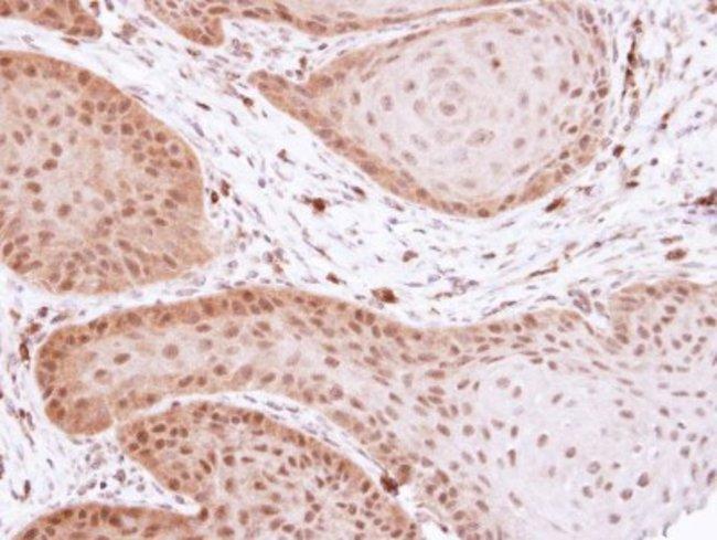 anti-TFIIB, Polyclonal, Novus Biologicals 0.1mg; Unlabeled:Life Sciences