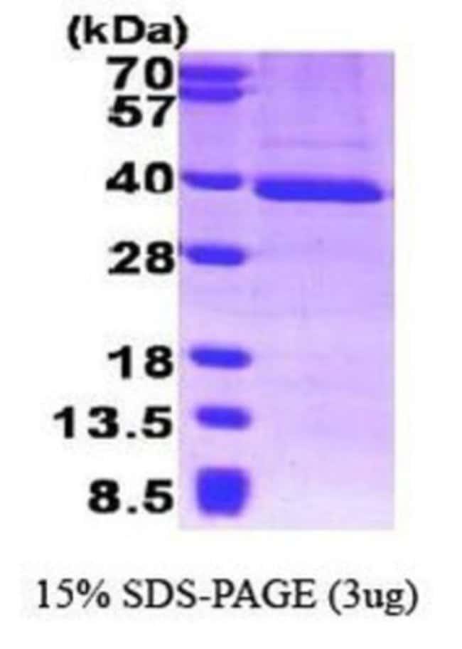 Novus Biologicals Human TFIIB Protein 0.1mg; Unlabeled:Life Sciences