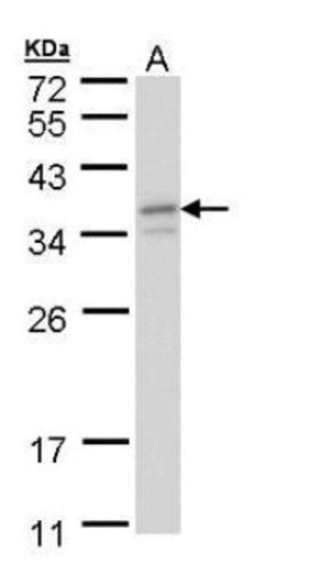 anti-TFIIE beta, Polyclonal, Novus Biologicals 0.1mL; Unlabeled:Life Sciences