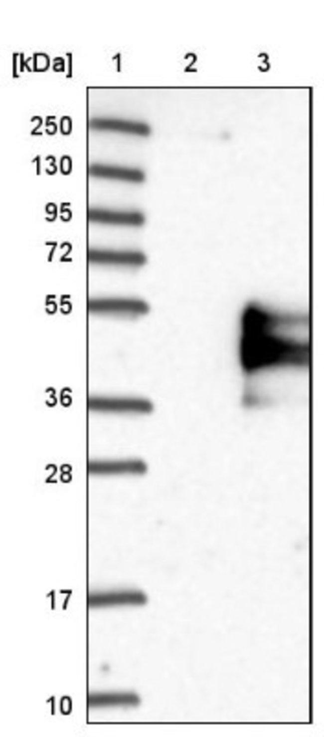 anti-TFPI, Polyclonal, Novus Biologicals 0.1mL; Unlabeled:Life Sciences